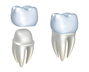 Dental Crowns and Bridges in Jacksonville, FL