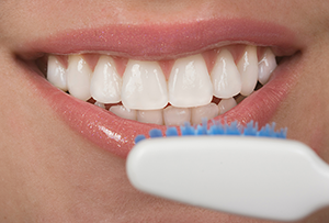 Dental Veneers in Jacksonville, FL
